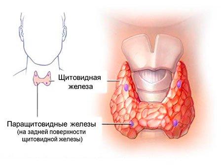 Рак щитовидки лечится